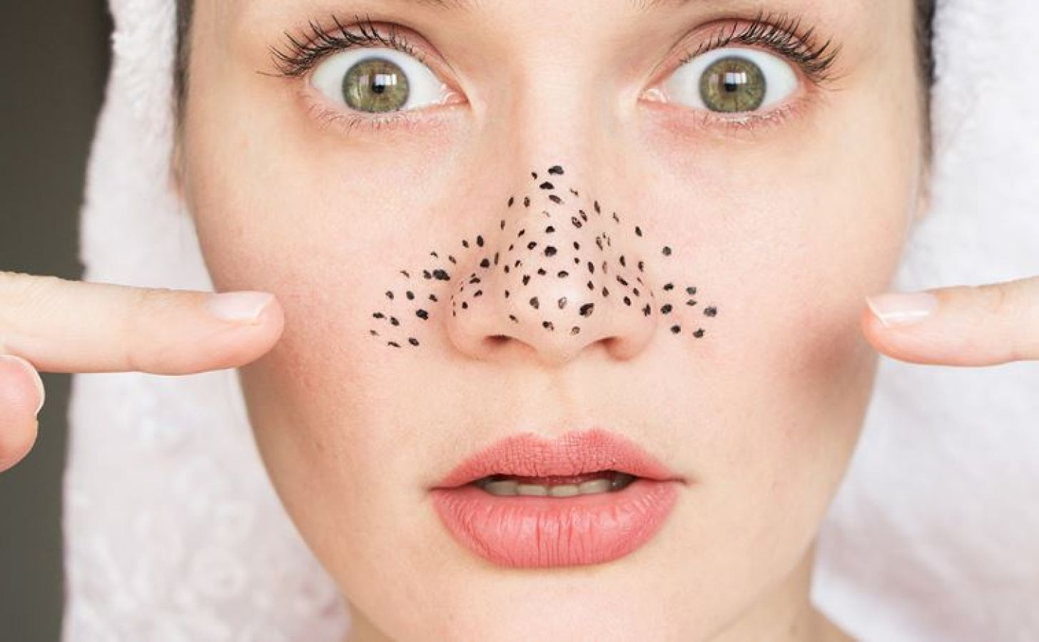 Diy Get Rid Of Blackheads With Toothpaste News Track Live