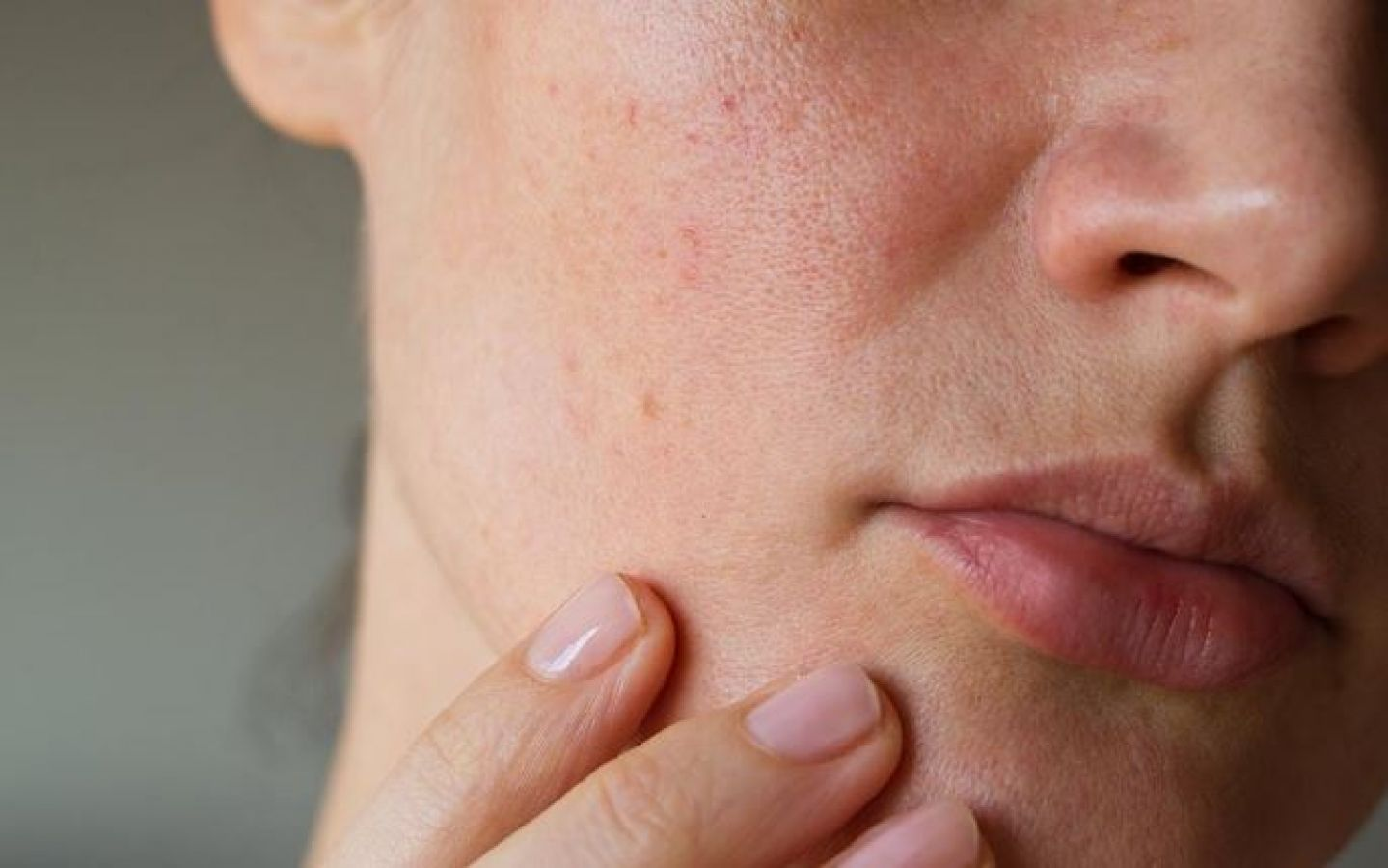 Tips To Remove Deep Acne Scars Or Pimple Holes On Face News Track Live Newstrack English 1