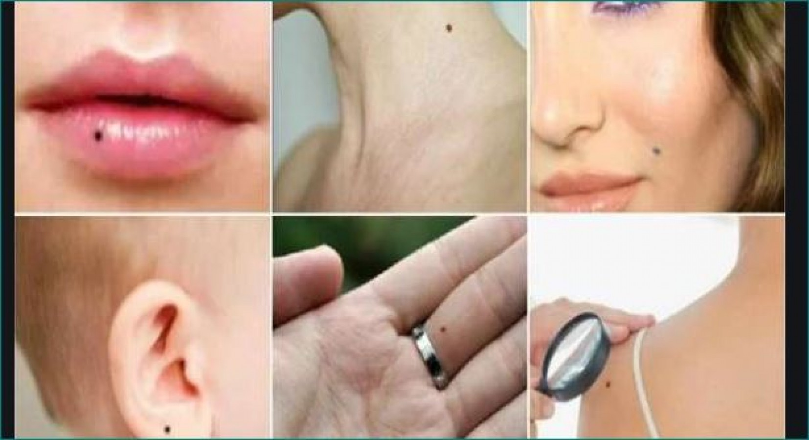 Mole On Lips Meaning In Hindi