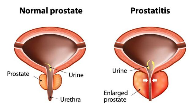 A Brief History of Prostatitis pt 1.
