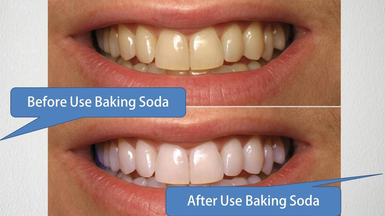 3 Home Remedies To Whiten Your Teeth News Track Live Newstrack