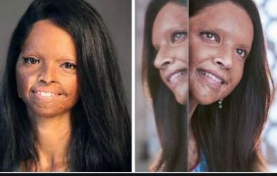 This is how Deepika Padukone gets look of Malti in Chhapaak, did this hard work