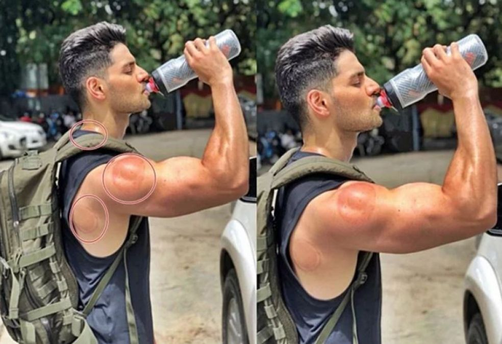 Red marks visible on Sooraj Pancholi's body, fans get