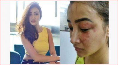 This famous actress was beaten up,