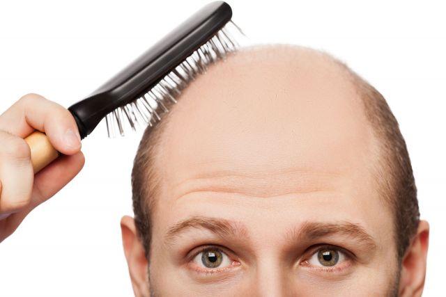आखिर क्यों झड़ते है सिर के बाल? जानिए