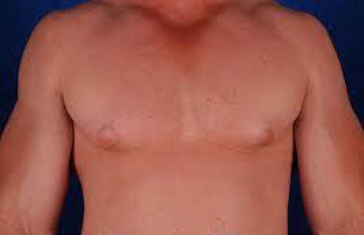गायनीकोमैस्टिया होता है कारगर इलाज