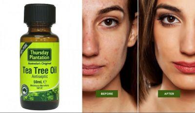ये तेल भी हटा सकते हैं आपके चेहरे के दाग धब्बे