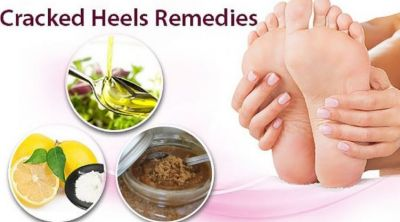 Amazing tips to get rid of cracked feet and make them beautiful