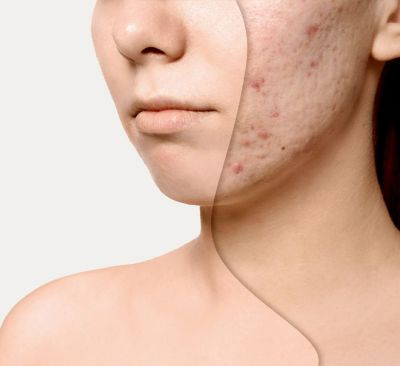 Want to get rid of pimples? Then do this treatment
