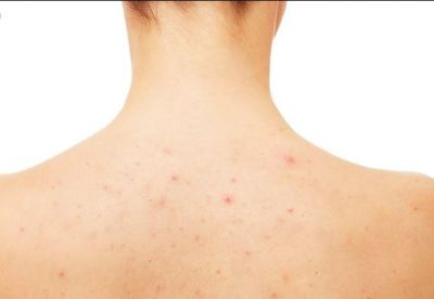 Get Rid of Back Acne with These Tips