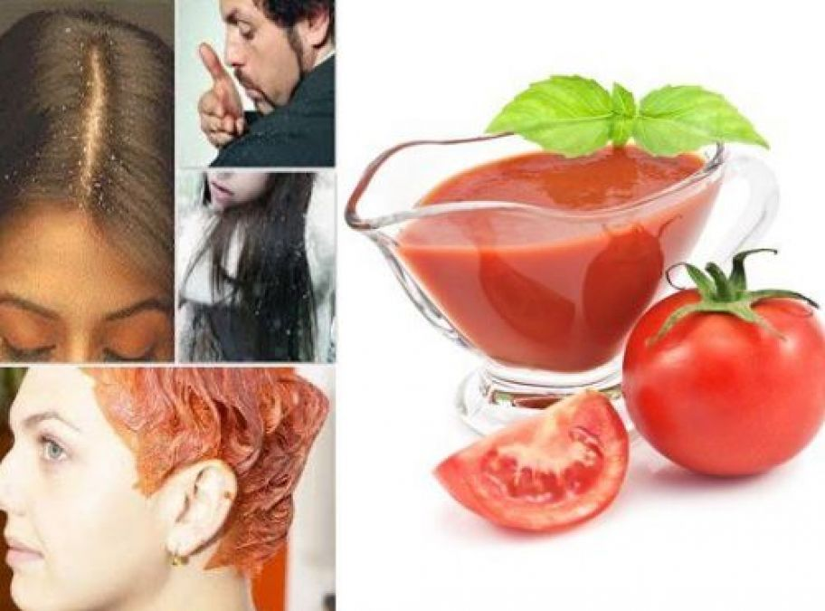 Don't let dandruff damage your image, use Tomato juice to fight dandruff
