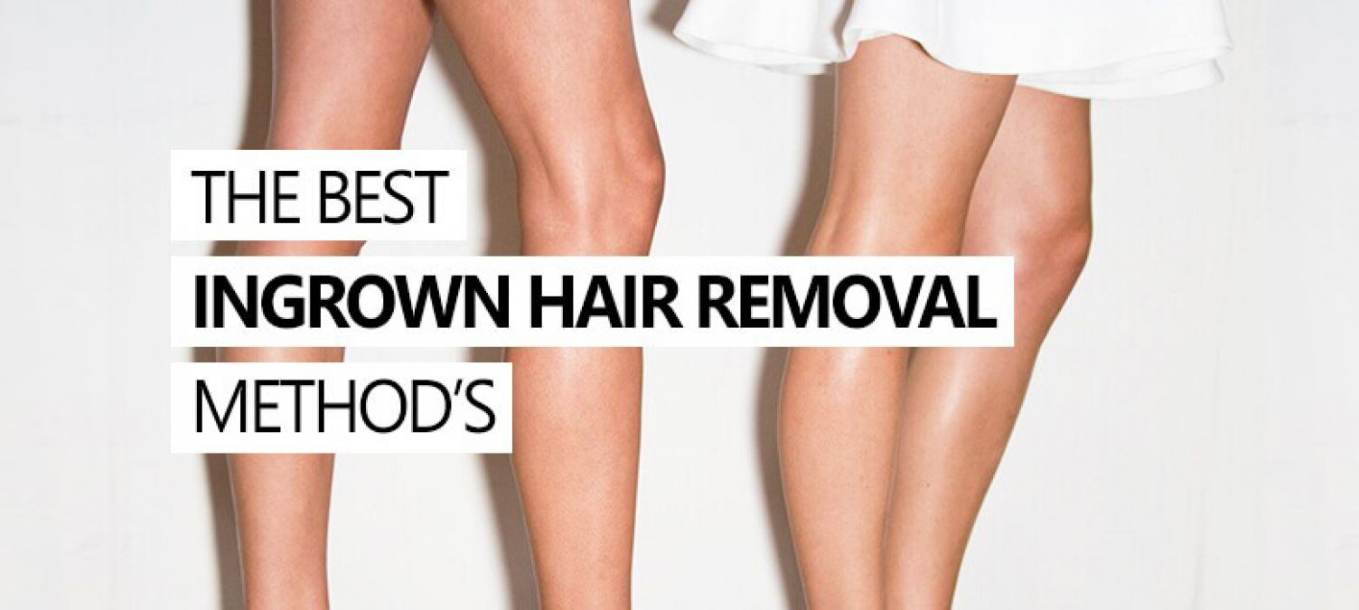 Treating and Preventing Ingrown Pubic Hair fast