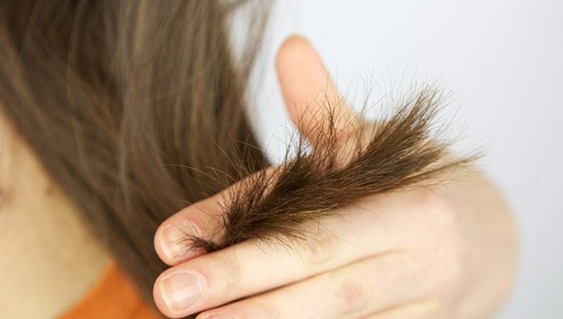 दो मुंहे बालों की समस्या को दूर करते हैं यह उपाय