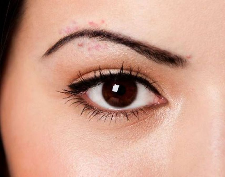 The Real Reason You Have Acne Between Your Eyebrows