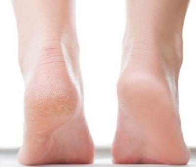 Here how to repair heels in Rainy season with Vanaspati Ghee