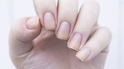 If you are fond of growing nails, know this
