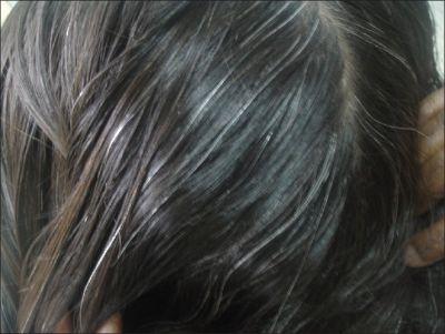असमय होने वाले सफ़ेद बालों का ये है आसान इलाज