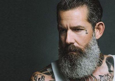 Beard Dandruff Can make your beard appearance bad