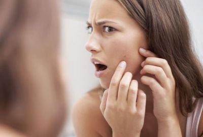 Facial pimple can affect your mind too, know how