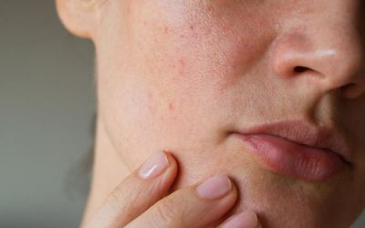 Tips To Remove Deep Acne Scars or Pimple Holes on Face