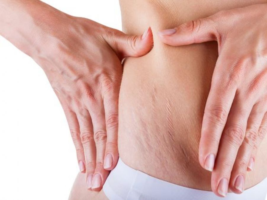 Fast and simple home remedies to get rid of pregnancy stretch marks