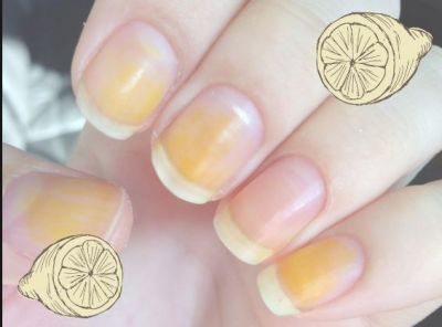 Natural Way To Whiten Yellow Nails A Quick Trick to Make your Nails look Whiter