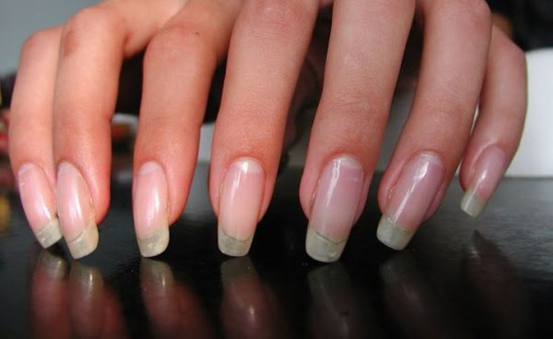 Home Remedies to Grow Nails Longer and Stronger Naturally