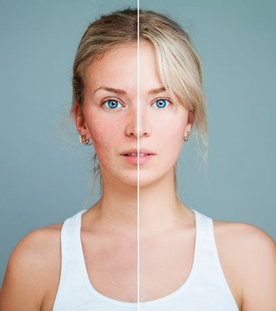 Photofacial is beneficial for Skin, know the advantages and disadvantages