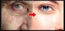 क्या आपकी त्वचा का ढीलापन आपको बूढ़ा दिखा रहा है ? इसे दूर करने के लिए अपनाये ये उपाय