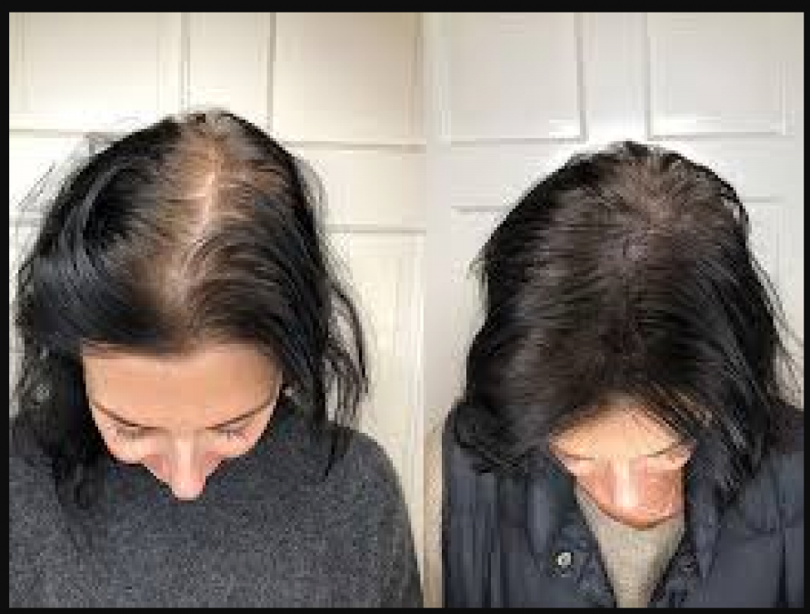 If you are struggling with the problem of severe hairfall, this treatment will provide