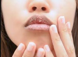 सर्दियो मे फ़टे होंठो को नैचुरली पिंक बनाने के लिए अपनाए ये टिप्स