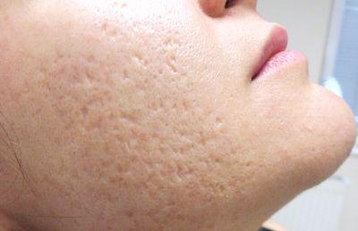 इन तरीकों से करें त्वचा के रोमछिद्रों की सफाई