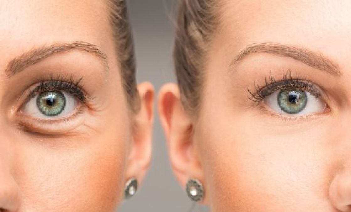 Wrinkles near the eyes are not a sign of old age, these are also the reason