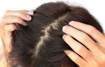 Scalp cleaning is necessary for strong hair, know how to do it