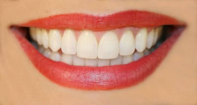 चमकते हुए दांतो के लिए करे तेजपत्ते का इस्तेमाल