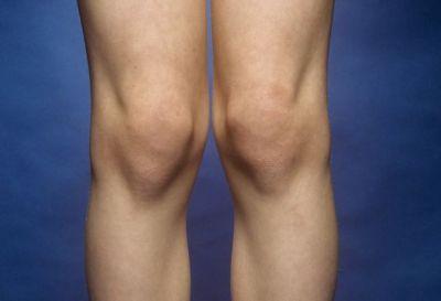 घुटनों के अल्सर को इन चीज़ों से करें ठीक