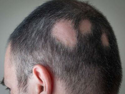 Alopecia Areata & Hair Loss: Signs, Symptoms and Treatment Options