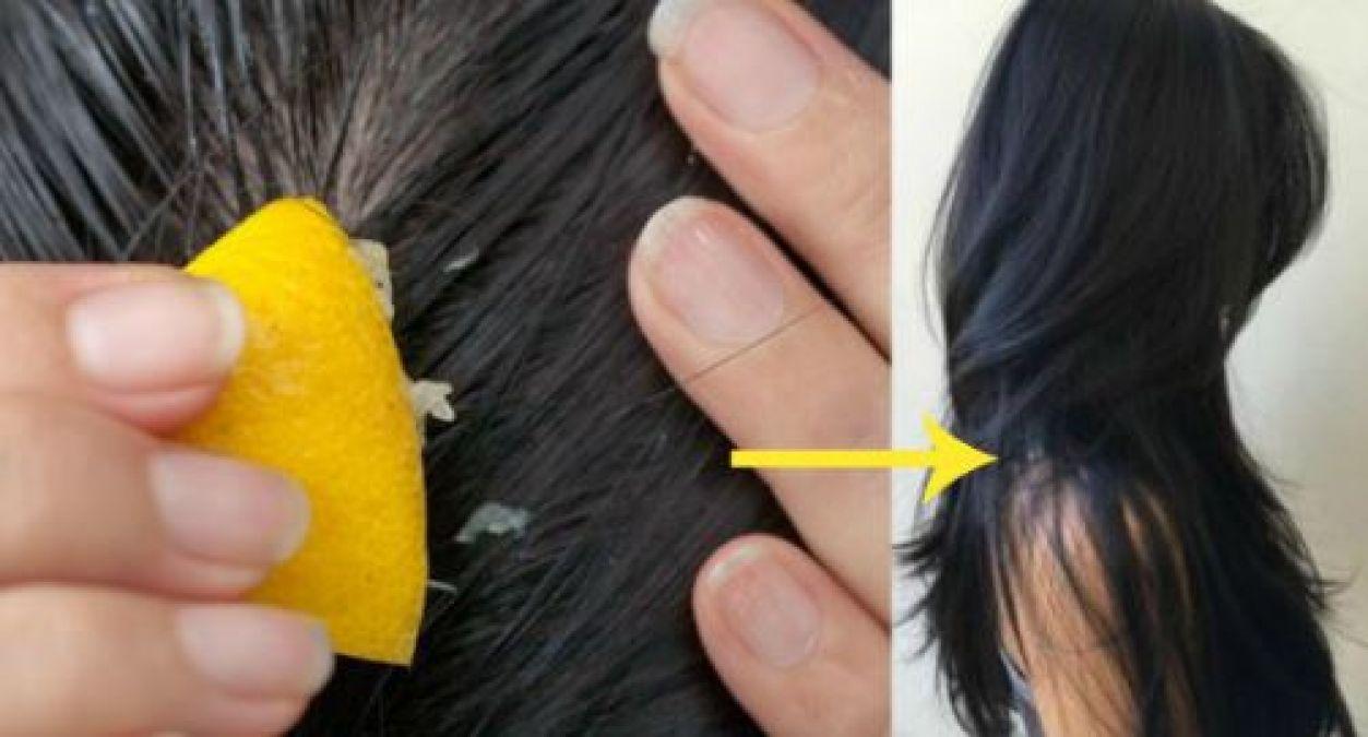 बालों को मजबूती देता है निम्बू, ऐसे करें इस्तेमाल