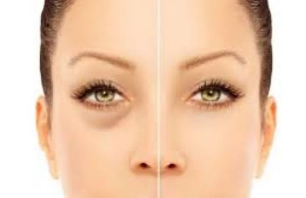 Puffy Eyes: Follow these tips to Reduce Puffy Eyes