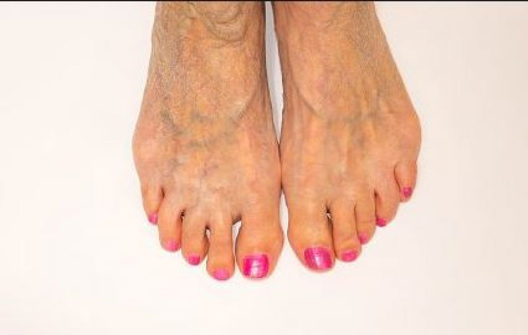Signs of Disease Your Feet Can