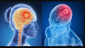 These unusual symptoms are seen in brain tumors, know here