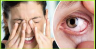 Follow these tips to get rid of problem of dry eye