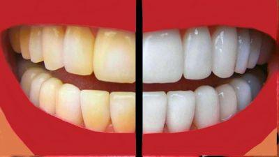 नारियल के तेल से बनेंगे आपके दांत मोतियों जैसे