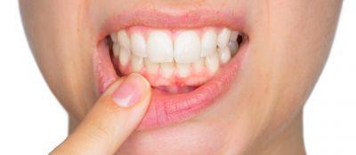 दांतों की समस्याओं को दूर करती है  नीम की पत्तियां