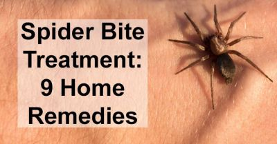 On Spider bites get swelling then follow these cures