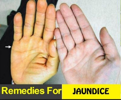 Diet for jaundice recovery: These things can give immediate relief
