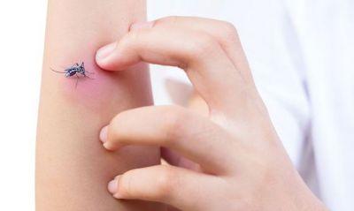 मच्छरों के काटने से इस कारण होती है खुजली