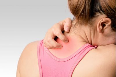 Get rid of Prickly Heart Rashes from these home remedies
