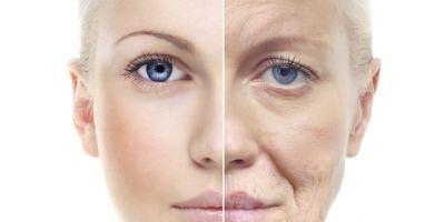 यह अंतर होता है Age spots और Acne Spots के बीच