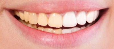 इन उपायों से आप भी चमका सकते है अपने पीले दांत